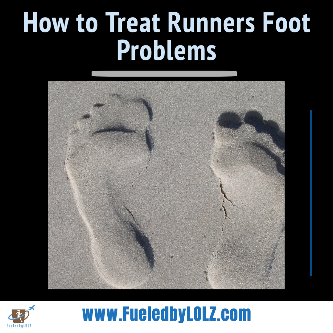how can you treat runner's feet?